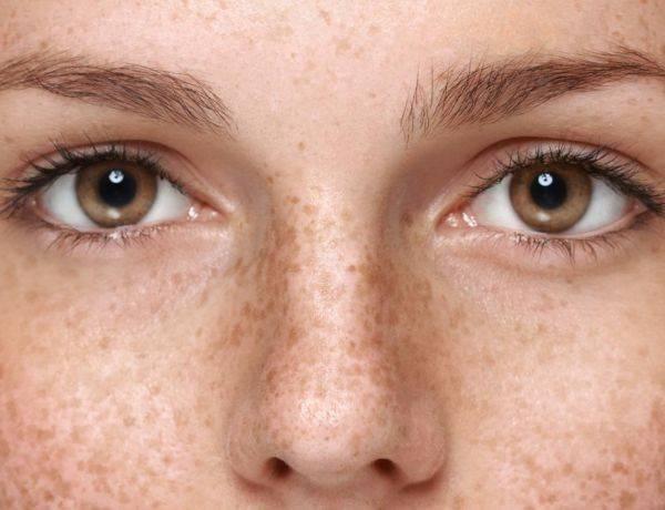 удаление пигментных пятен причины как избавиться от пигментных пятен пигментация на лице пигментация кожи причины пигментации